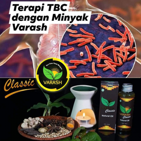 TERAPI TBC DENGAN MINYAK VARASH Part 2