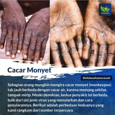 Penyakit Apa Cacar Monyet (Monkeypox)?