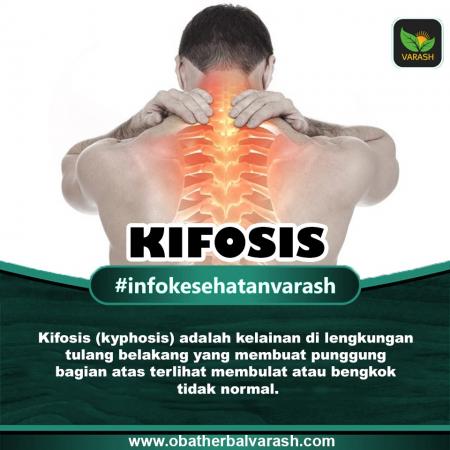 Apa Penyebab Kifosis dan Bagaimana Pengobatannya