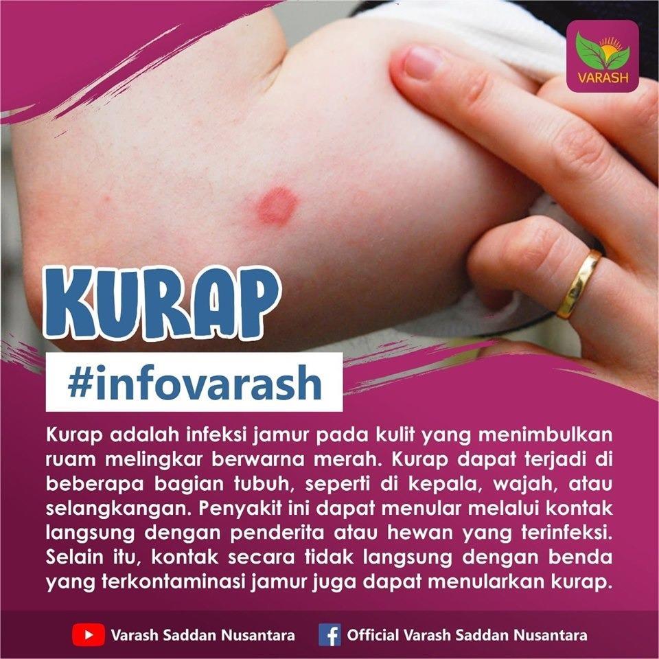 terapi kurap dengan varash oil