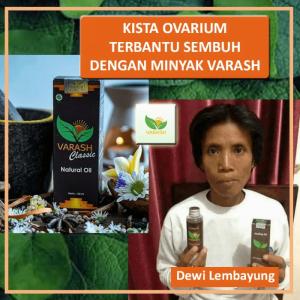 Testimoni Kista Ovarium Dewi Lembayung