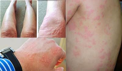 Alergi Dingin Bisa Sembuh dengan Minyak Varash Care Roll On