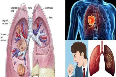 Kanker paru-paru bisa sembuh - Varash (+628121737190)